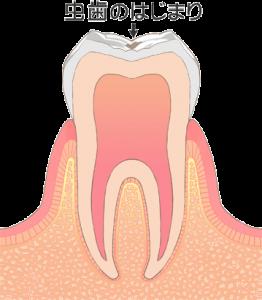 むし歯治療 c0