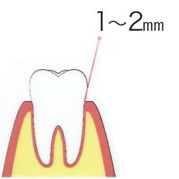 歯周病 健康な状態