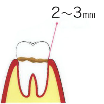 歯肉炎 1〜2mm