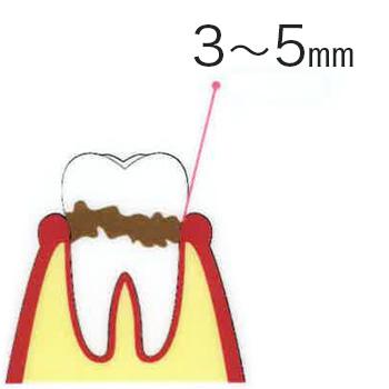 歯周炎(軽度) 3〜5mm