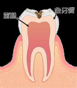 むし歯治療 c2