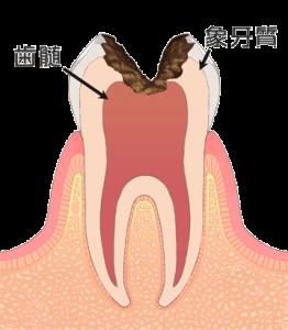むし歯治療 c3