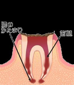 むし歯治療 c4